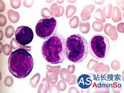 新标准:中国原创方案突破白血病世界性难题