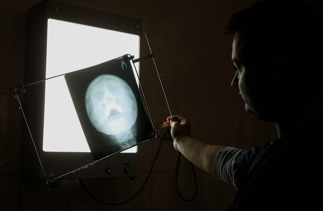 AI或可减轻放射科医师压力 而非淘汰他们