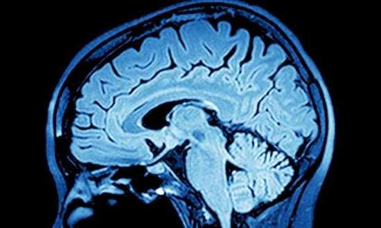 科学家发现修复大脑新方法:中风有望通过药物治愈