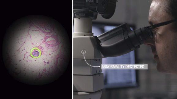 谷歌推AR显微镜:机器学习加持,迅速识别癌细胞