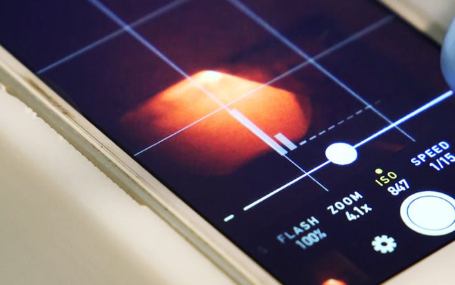 iPhone摄像头和特别设计薄膜能用于家庭健康测试和安全临检