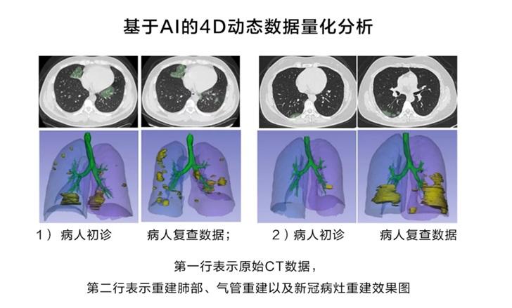 华为云推出新冠肺炎AI辅助诊断服务,CT量化结果可秒级输出